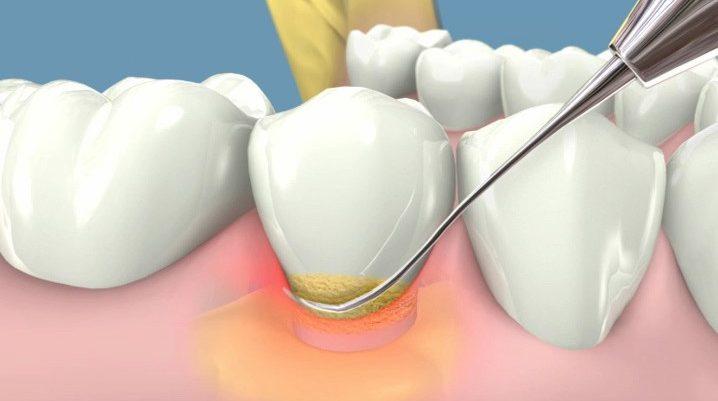 Enfermedades de las encías o Enfermedad periodontal